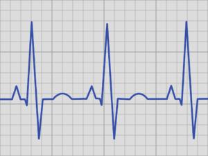 ECG telemetry